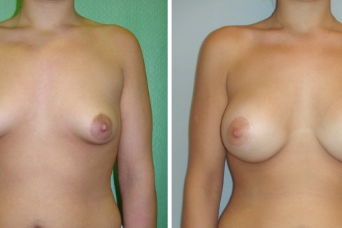 Tuberous breast – Case 2 A