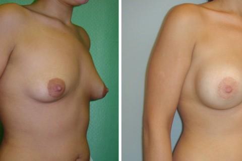 Tuberous breast – Case 2 B