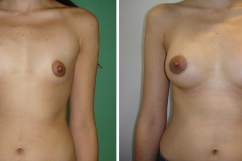 Breast Augmentation A – Case 19 A