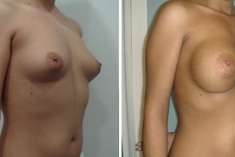 Tuberous breast – Case 19 B