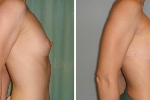 Breast Augmentation R — Case 19 B