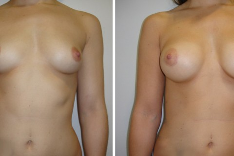 Breast Augmentation A – Case 20 A