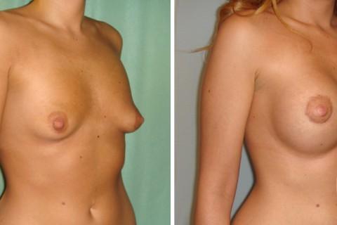 Tuberous breast – Case 20 B
