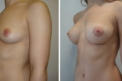 Breast Augmentation A – Case 20 B