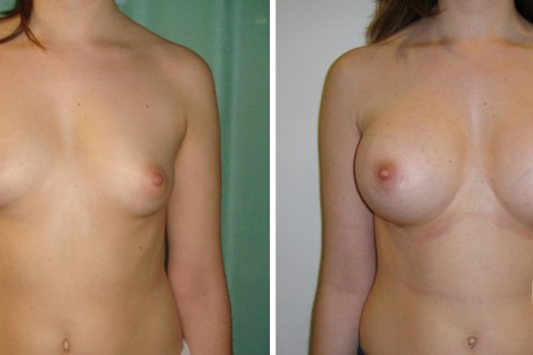 Tuberous breast — Case 21 A