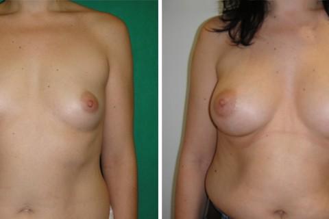 Breast Augmentation A – Case 21 A
