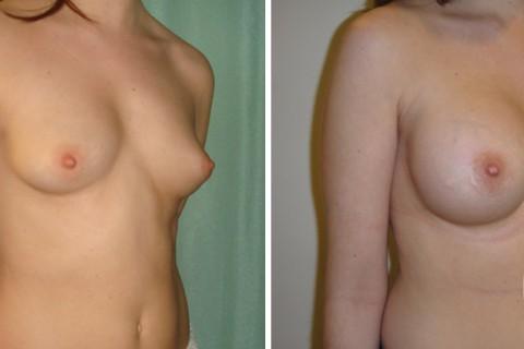 Tuberous breast — Case 21-B