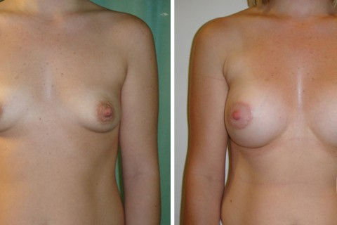 Tuberous breast – Case 22 A