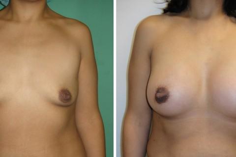 Breast Augmentation A – Case 22 A