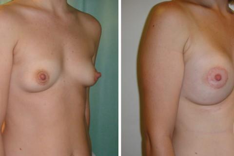 Tuberous breast – Case 22 B