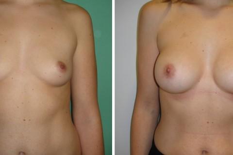 Breast Augmentation A – Case 23 A