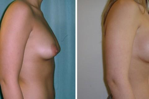 Tuberous breast — Case 23 B