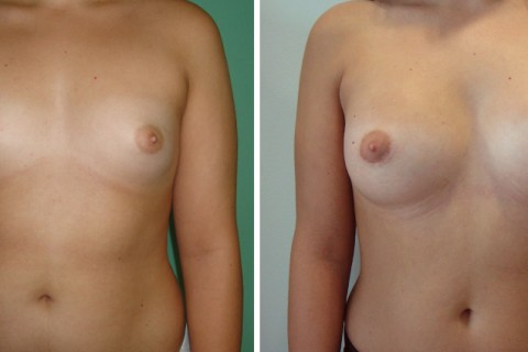 Breast Augmentation A – Case 24 A