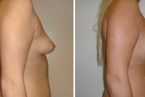 Tuberous breast – Case 24 B