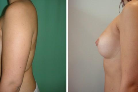 Breast Augmentation A – Case 24 B
