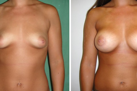 Tuberous breast – Case 25 A