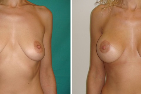 Breast Augmentation R — Case 20