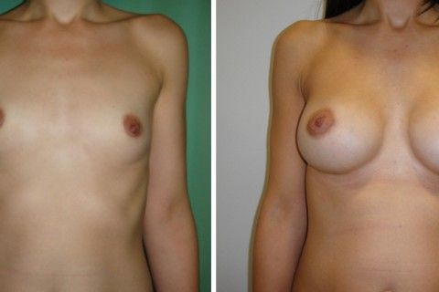 Breast Augmentation A – Case 25 A
