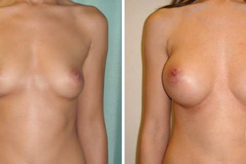 Breast Augmentation R – Case 21 A