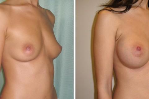 Breast Augmentation R – Case 21 B