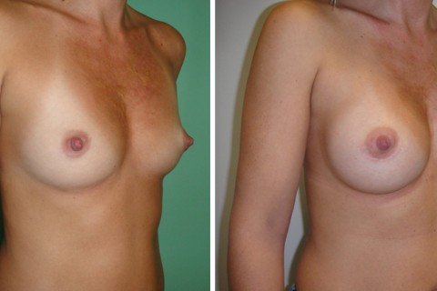 Breast Augmentation A – Case 26