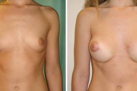 Breast Augmentation R – Case 22