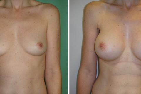 Breast Augmentation A – Case 27 A