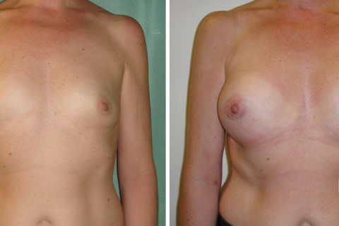 Breast Augmentation R – Case 23