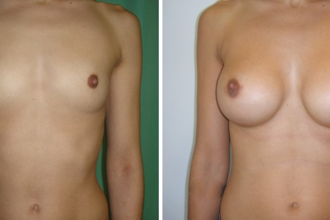 Breast Augmentation A – Case 28 A