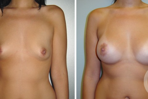 Tuberous breast — Case 3 A