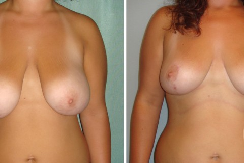 Breast Reduction — Case 2