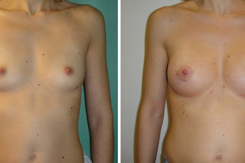 Breast Augmentation A – Case 1 A