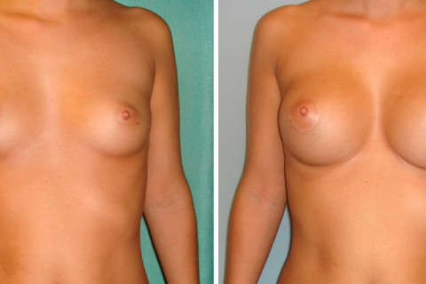 Breast Augmentation R – Case 1 A