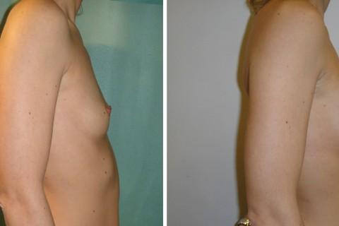 Breast Augmentation A – Case 1 B