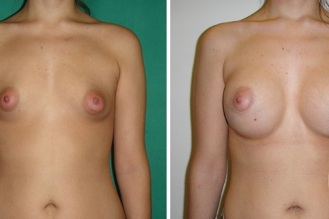 Tuberous breast – Case 30 A