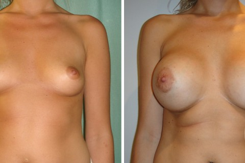Breast Augmentation R – Case 24 A
