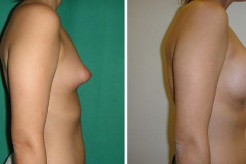 Tuberous breast — Case 30 B