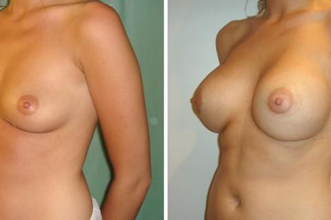 Breast Augmentation R – Case 24 B