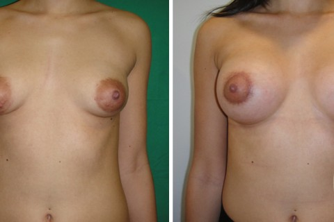 Tuberous breast — Case 31 A