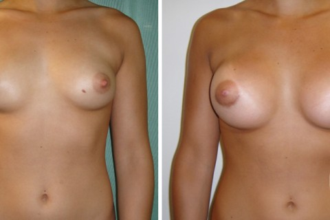 Breast Augmentation R — Case 25