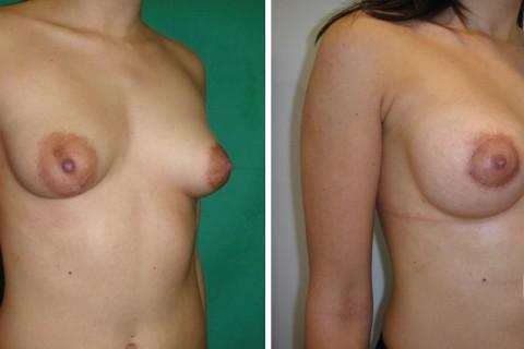 Tuberous breast – Case 31 B
