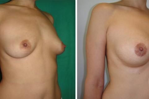 Tuberous breast – Case 32
