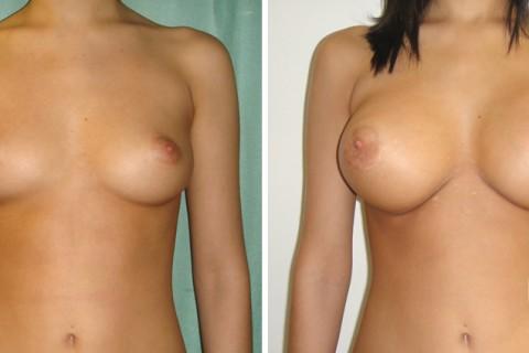 Breast Augmentation R — Case 26 A