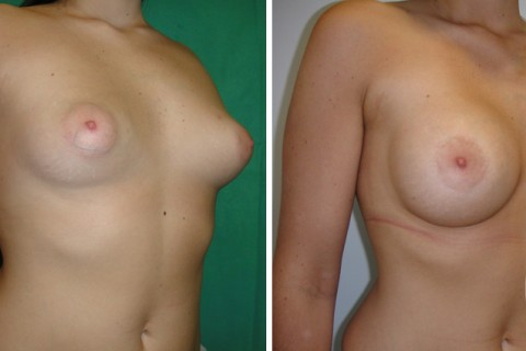 Tuberous breast — Case 33 B