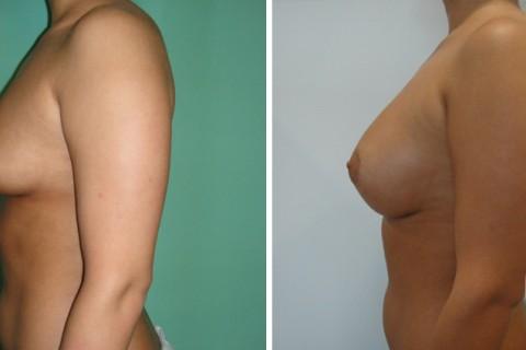Tuberous breast – Case 34 B