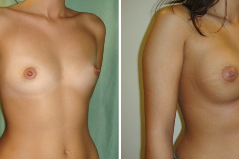Breast Augmentation R – Case 28 B