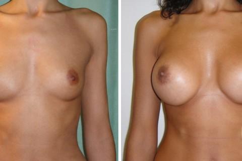 Breast Augmentation R – Case 29 A