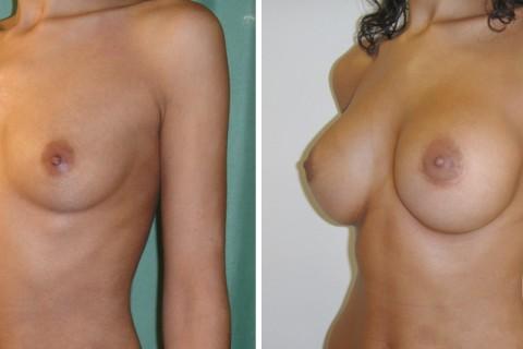 Breast Augmentation R – Case 29 B
