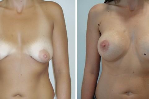 Tuberous breast – Case 29