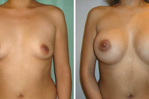 Breast Augmentation R – Case 30